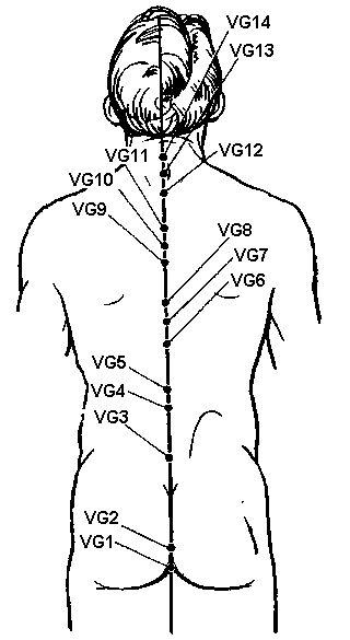 Заднесредінний меридіан (VG)