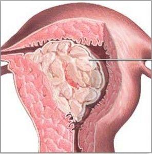 Залозиста гіперплазія ендометрію: причини, форми та етапи лікування