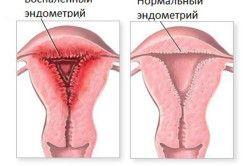 післяпологовий ендометрит