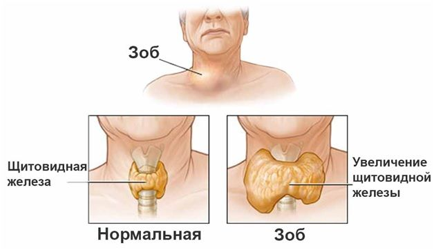 Зоб щитовидної залози у людини: основні симптоми та перші ознаки захворювання у жінок, як лікувати хворобу