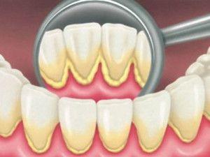Зубний камінь